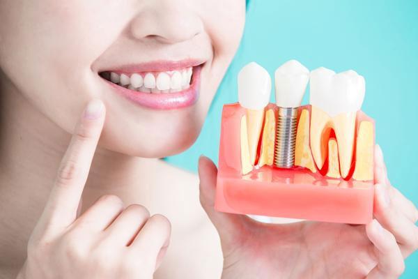 Implantes dentales en Barcelona